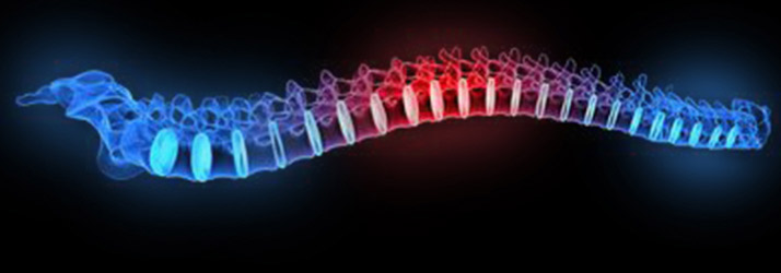 Chiropractic Vineland NJ Sciatica Treatment